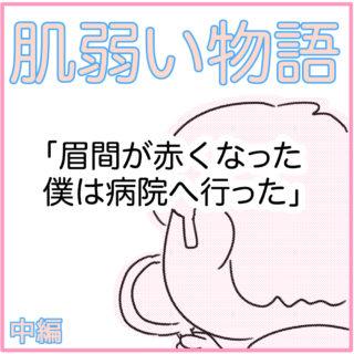肌弱い物語【中編】